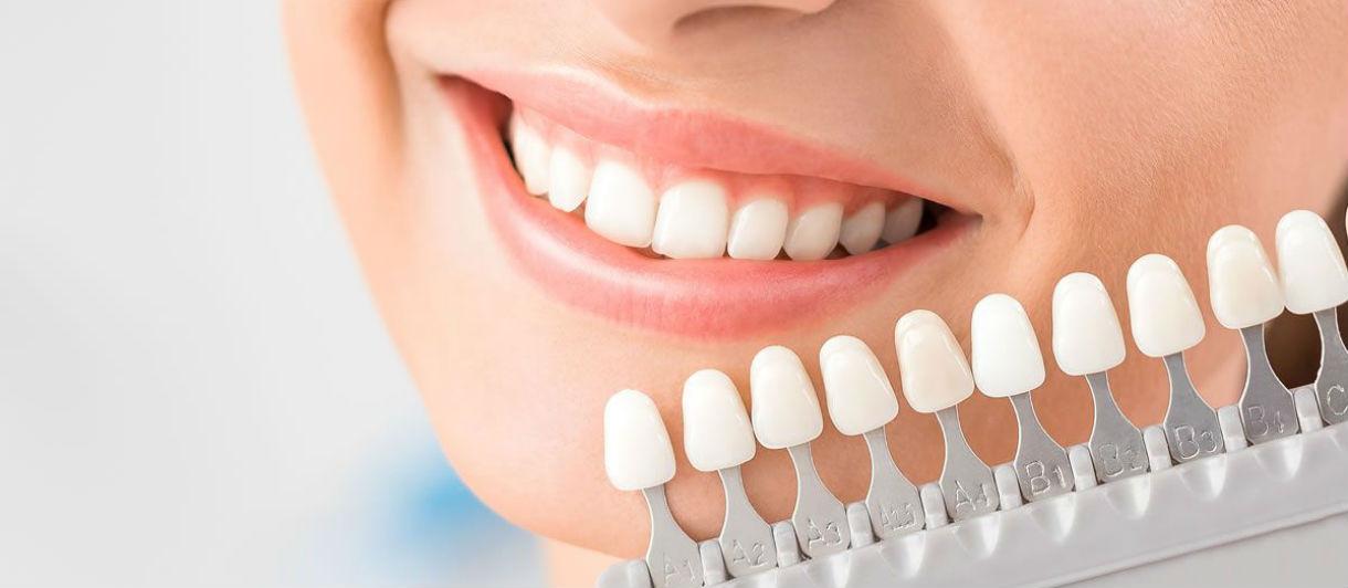Отбеливание зубов – виды и цены на профессиональное стоматологическое отбеливание в Москве в клинике Кариесу.Нет